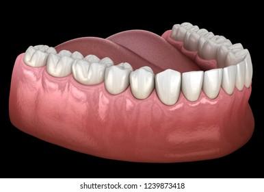 Mandibular human gum and teeth. Medically accurate tooth 3D illustration