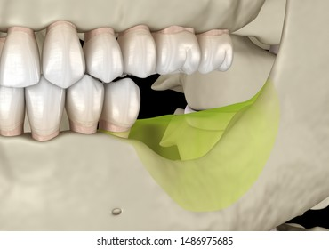 Mandibular Jaw, bone recession after losing molars teeth. Medically accurate dental 3D illustration