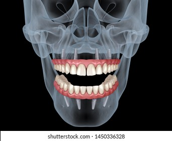 Mandibular and Maxillary prosthesis All on 4 system supported by implants. Medically accurate 3D illustration of human teeth and dentures concept