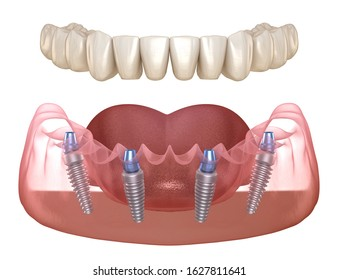Mandibular prosthesis All on 4 system supported by implants. Medically accurate 3D illustration of human teeth and dentures concept