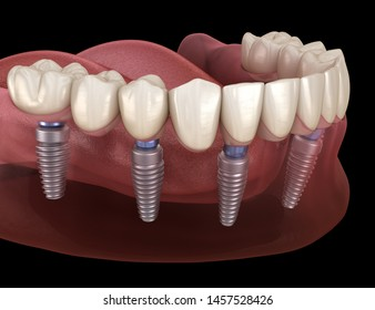 Mandibular prosthesis All on 6 system supported by implants. Medically accurate 3D illustration of human teeth and dentures concept
