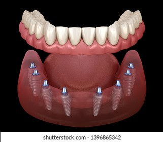 Mandibular prosthesis All on 8 system supported by implants. Medically accurate 3D illustration of human teeth and dentures concept