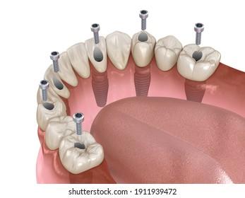 Mandibuläre Prothese mit Kaugummi All on 6 System unterstützt durch Implantate.  Medizinisch genaue 3D-Illustration des Konzepts der menschlichen Zähne und Prothesen