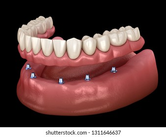 Mandibular removable prosthesis All on 6 system supported by implants.  Medically accurate 3D illustration of human teeth and dentures concept