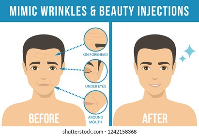 Man's anti-aging skin care and men's cosmetics. Different types of facial wrinkles. Man before and after beauty injection. Anti-aging procedure.