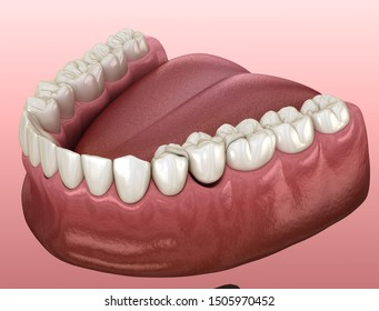 Maryland bridge made from ceramic, premolar tooth recovery. Medically accurate 3D illustration of dental concept