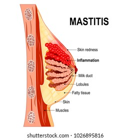 Mastitis. Cross-section of the mammary gland with inflammation of the breast (abscess formation). Women's Health. Human anatomy. diagram for medical use