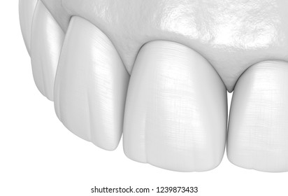 Maxillary human teeth - incisors. Medically accurate tooth 3D illustration