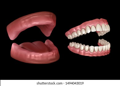 Maxillary and Mandibular prosthesis, artificial dentures. Medically accurate 3D illustration of human teeth and dentures