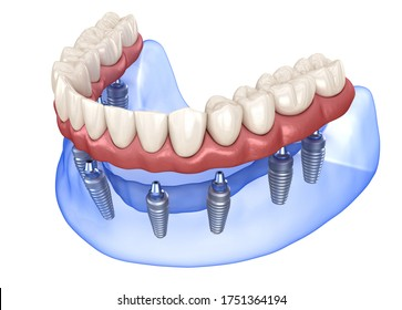 Maxillary and Mandibular prosthesis with gum All on 8 system supported by implants. Medically accurate 3D illustration of human teeth and dentures