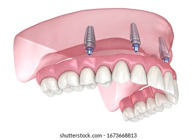 Maxillary prosthesis with gum All on 4 system supported by implants. Medically accurate 3D illustration of human teeth and dentures