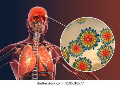 Measles induced complications, conceptual image. 3D illustration showing pneumonia and encephalitis with close-up view of measles viruses