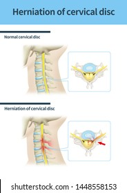 Mechal illustration for cervical disc herniation(300dpi a2size jpeg)