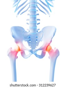 medical 3d illustration of a painful hip