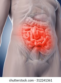 medical 3d illustration of a painful intestine