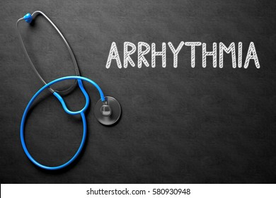 Medical Concept: Arrhythmia - Text on Black Chalkboard with Blue Stethoscope. Black Chalkboard with Arrhythmia - Medical Concept. 3D Rendering.