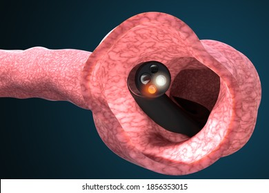 Medical device to check the condition of the intestines and detect gastrointestinal diseases. Colonoscopy and gastroscopy medical diagnosis. 3d illustration