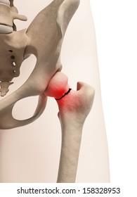 medical illustration of broken hip