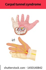 Medical illustration for carpal tunnel syndrome(300dpi A2 size jpeg / for explain)