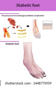 Medical illustration for diabetic foot disease(300dpi A2size jpeg)