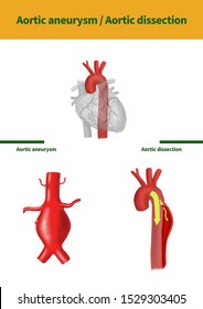 Medical illustration to explain Aortic aneurysm n Aortic dissection