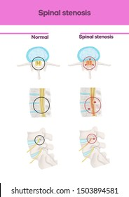 Medical illustration to explain Spinal stenosis