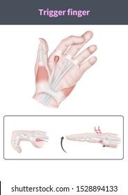 Medical illustration to explain Trigger finger