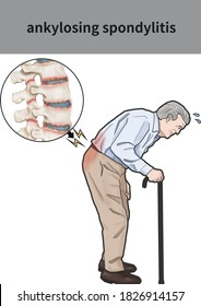 Medical illustration for explanation ankylosing spondylitis