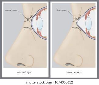 medical illustration of the eye disorder Keratoconus (thinning of the cornea)
