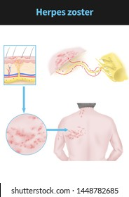 Herpes Zoster - Medical Illustration, Human Anatomy ...  Herpes Medical Illustration