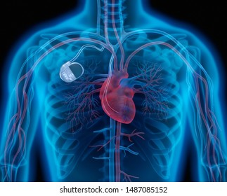 Medical illustration of a permanent pacemaker implant - 3D illustration