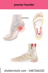 Medical illustration of plantar fasciitis
