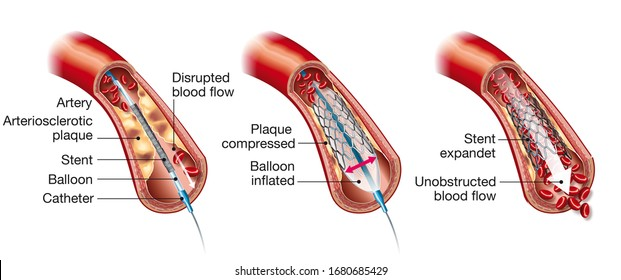 Medical illustration showing balloon angioplasty and stent insertion