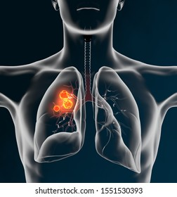 Medical Illustration showing lung cancer or bronchial carcinoma on black background, 3D illustration