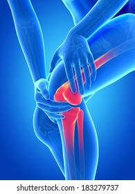 medical illustration - woman having pain in the knee