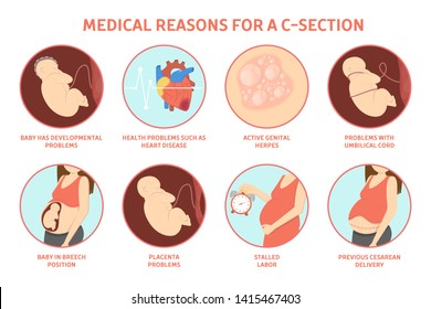 Medical reasons for cesarean delivery or c-section. Medical surgery and abdominal incision. Stalled labor and herpes, problem with placenta. Isolated  illustration