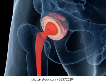 Medically accurate illustration of the hip replacement. 3d illustration.
