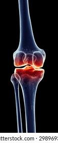 medically accurate illustration - painful knee