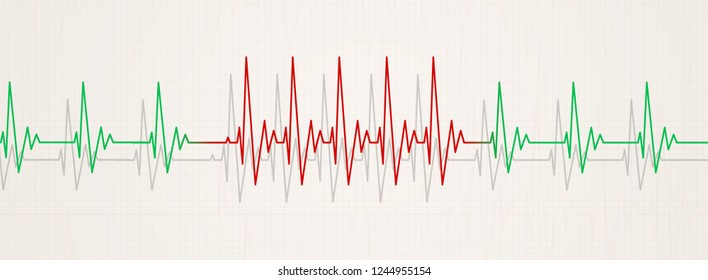 medicine banner illustrating sudden arrhythmia. heart rate increasing more than 90 beats per minute