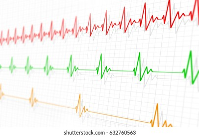 medicine illustration of different heart pulsatings fast normal and slow