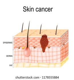 Melanoma. skin cancer originates from melanocytes. layers of the human skin.  Epidermis (horny layer and granular layer), Dermis (connective tissue) and Subcutaneous fat (adipose tissue).