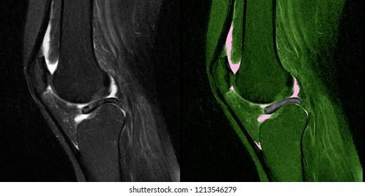 Meniscal tear, knee, MRI