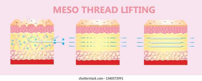 Meso thread Lift. Young and old skin. Lifting by threads concept