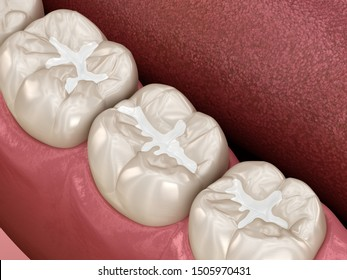 Molar Fissure dental fillings, Medically accurate 3D illustration of dental concept