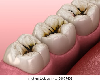 Molar teeth damaged by caries. Medically accurate tooth 3D illustration.