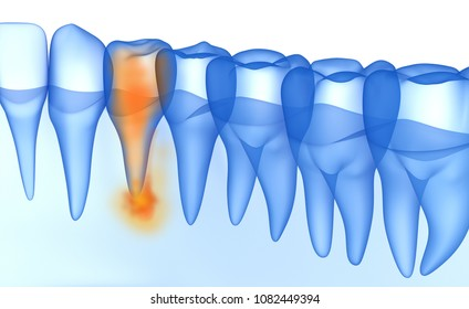 Mouth gum and teeth xray view. Teeth problem. Medically accurate tooth 3D illustration