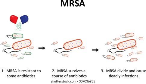 staphylococcus aureus images