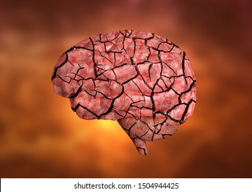 Multiple sclerosis is an autoimmune disease that affects the brain, optic nerves and spinal cord affecting the entire central nervous system. 3D rendering