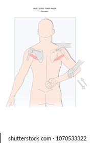 muscle testing: teres major. Test used in applied kinesiology, neurology, physical therapy.