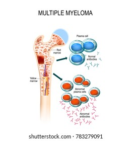 Myeloma cells suppress the growth of healthy cells that make blood. malignant plasma cells produce a paraprotein (inactive antibody or M protein)